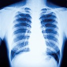 X_ray film showing person´s chest