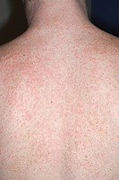 Close_up of a skin rash due to an allergic reaction to the antibiotic clindamycin on the back of a 16 year old male.