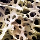 Human femur cancellous, trabecular, or spongy bone. SEM X26