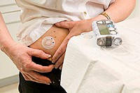 50_year_old diabetic woman with type 1 diabetes with an external insulin pump.