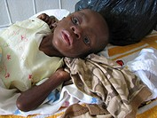 boy of 10 months in hospital, HIV_positive and severely malnourished, Haiti, Grande Anse, Jeremie