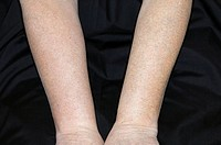 View of the arms of an adult female patient, showing swelling of the forearm at left due to subclavian vein thrombosis. A type of deep vein thrombosis...