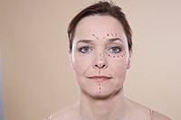 Woman's face with marks for a cosmetic surgery