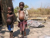 Malnourished boys at the MSF feeding centre  Feeding centres and other humanitarian aid were organised in Angola after widescale malnutrition during a...