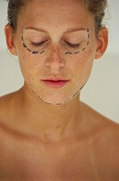 Young woman with guide markings for cosmetic surgery