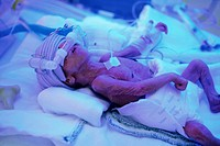 A premature baby under a UV billy light.