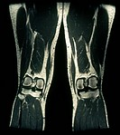 MRI through a longitudinal frontal section of human legs.