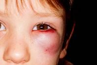 Boy with black eye.