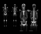 This composite set of images demonstrate the normal appearance of a whole body nuclear medicine bone scan.