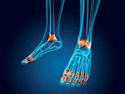 X_ray view of inflamed foot bones