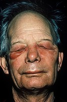 Edema from a maxillary abscess under the right eye of an elderly man.