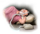 Illustration of a man undergoing treatment for sleep apnea.