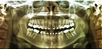 Panoramic x_ray of the dental arches, frontal view, showing orthodontic braces on the teeth of a 19 year old male patient.
