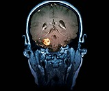 MRI of the brain, frontal view with intravenous gadolinium injection, showing an acoustic neurinoma on the right side in a 58 year old male patient. A...