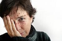 Portrait of woman with skin spots
