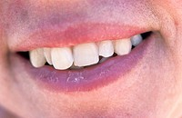 close up of a woman's mouth with an emphasis on her sculptural teeth as she smiles for us