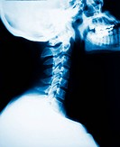 neck x_ray