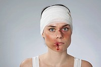 A woman with injuries and a bandaged head