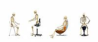 Chair ergonomics. Series of artworks of human skeletons, showing the correct posture for a human when sitting on different types of chair. In all four...