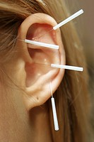 young woman gets acupuncture treatment at the ears