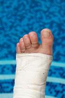 broken foot, Carcaixent, Valencia, Spain, Europe