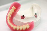 wax denture , artificial teeth