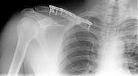 collarbone fracture with metal splint