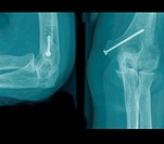 X_ray photographs of a surgical practice. fracture of the upper arm ,