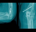 X _ ray photograph of a surgical practice . The radiograph shows : Humerus fracture role