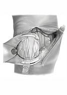 knee operation step 3