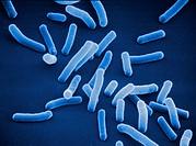 Colibakterien Escherichia Coli scanning electron microscope 8800x _ Kolibakterium _ Bacterium coli, Colibakterien, Escherichia coli, grief_negative Gr...