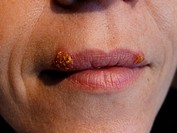 feminine mouth with herpes