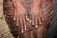 Dani Women amputate Fingers upon death of near relations, Baliem Valley, West Papua, Indonesia