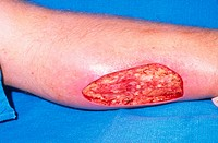 Skin graft, defect debrided. Image three of four.