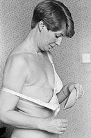 A 45 year_old woman applies a prosthetic breast to her bra. She had a radical mastectomy as a 24 year_old, photo from 1983.