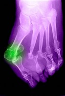 This x_ray shows a foot with a dislocated toe green.