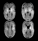 This composite of 4 axial, cross sectional, T1 weighted MRI images of the brain of a newborn shows the typical appearance when there is agenesis, fail...