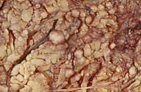 Peritoneum with a malignant tumor of mesothelium. Mesothelioma is seen as a thick sheet of white tumor, which encases the whole of the lung. It is alm...