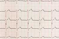 Electrocardiogram ecg heart beat test in paper