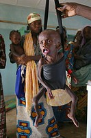 Children are being weighed to see if they have gained weight in Biu, Northern Nigeria