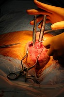 Photo essay at Lyon hospital. Department of urology. Surgical treatment of erectile dysfunction with a penile prosthesis. Dilation with Hegar candles.