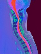 Inflamed spinal discs. Coloured magnetic resonance imaging MRI scan of a side view of the spine of a patient with discitis. The front of the body is a...