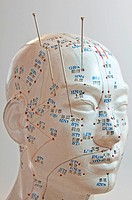 Acupuncture of the head
