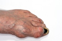 Swellings tophi in the large toe of the foot in an elderly male patient with gout. Gout is a disorder of uric acid metabolism in which crystals deposi...