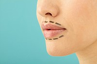 Woman Marked for Cosmetic Procedure