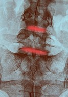 X_ray of the lumbo_sacral rachis of a 40_year_old woman, in frontal view, discal pinchings causing sciatalgia.