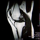 MRI of the left knee of a 42_year_old woman, Sagittal sequence in T1 weighted image. No anomaly is visible.