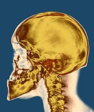 Skull. Coloured X-ray of the skull of a 30 year old male.