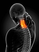 Human neck pain, computer artwork.