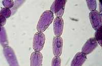 Light micrograph of staminal hair cells in Tradescantia.